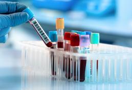 Blood specimens